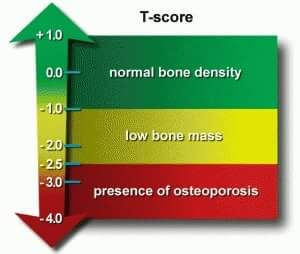 "Treatment of osteopenia (""pre-osteoporosis"") prevents osteopororsis"