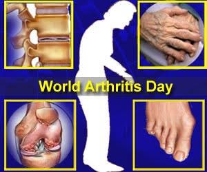 World Arthritis Day 2017